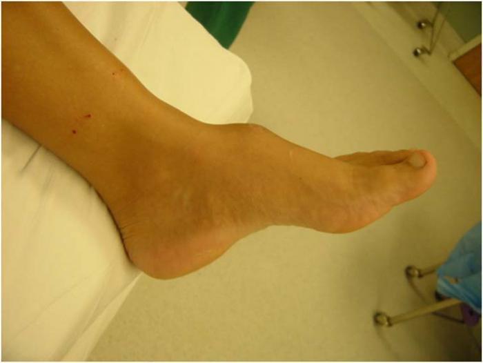 a térdízület 4. fokozatának artrózisa
